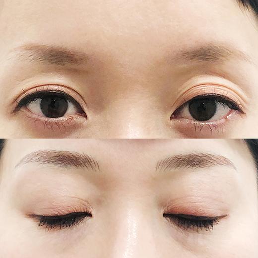 メディカルブロー 福原 症例写真1