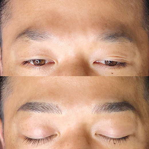 メディカルブロー 西口 症例写真1