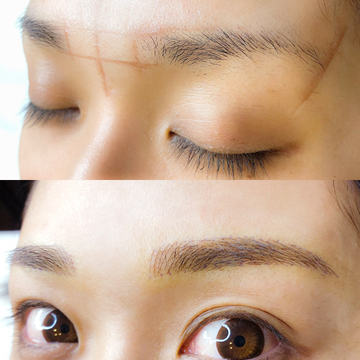 メディカルブロー 笹井 症例写真1