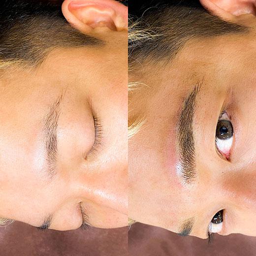 メディカルブロー 谷田 症例写真3