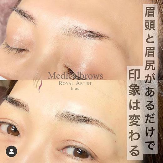 メディカルブロー 稲生 症例写真2