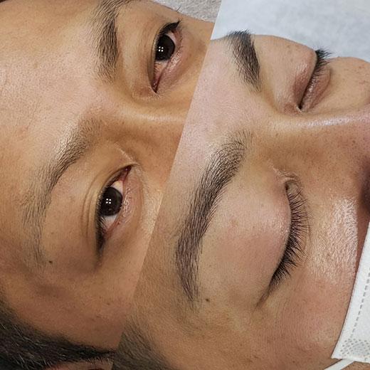 メディカルブロー 森 症例写真2