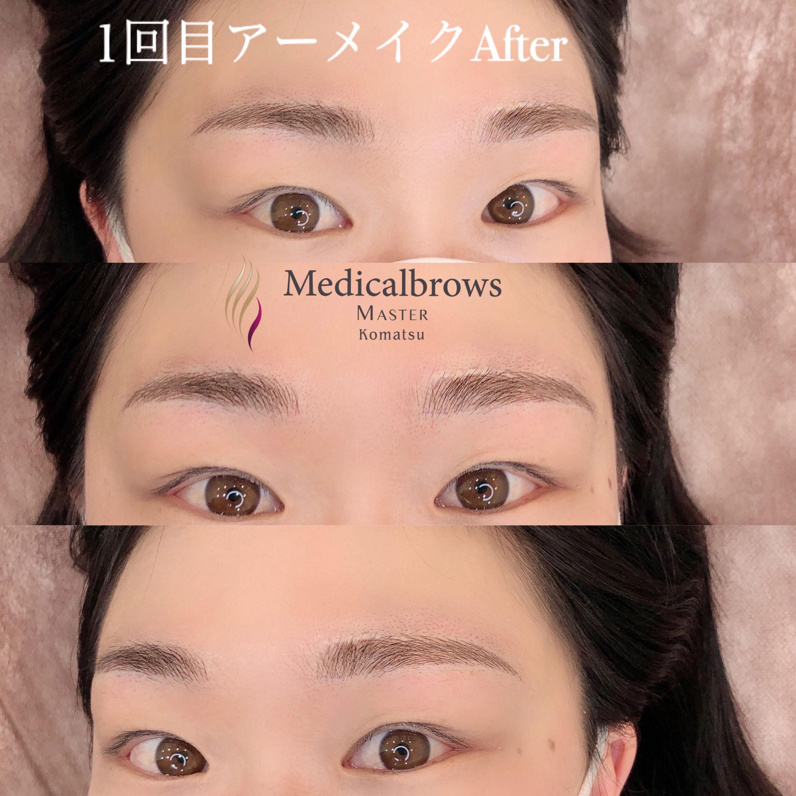 メディカルブロー 小松 症例写真3
