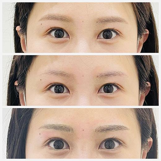 メディカルブロー 内田 症例写真3