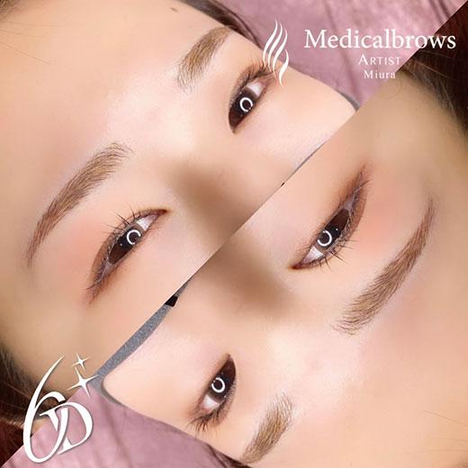 メディカルブロー 三浦 症例写真2