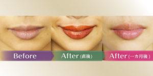 唇アートメイクの経過を1週間分レポート!リップのダウンタイムは変色が激しい?